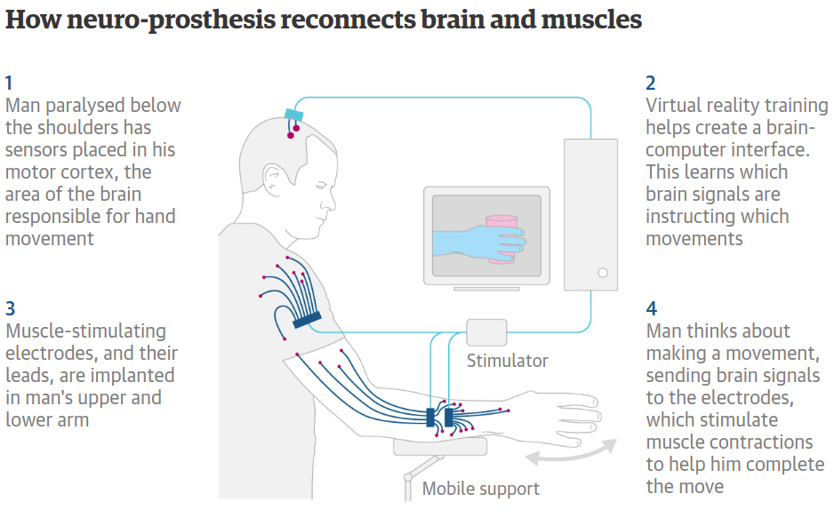 New achievement reached in Neuro-Prosthetics: paralyzed man move his arm to feed himself