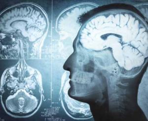 The Amazing Brain - Symposium Program graphic